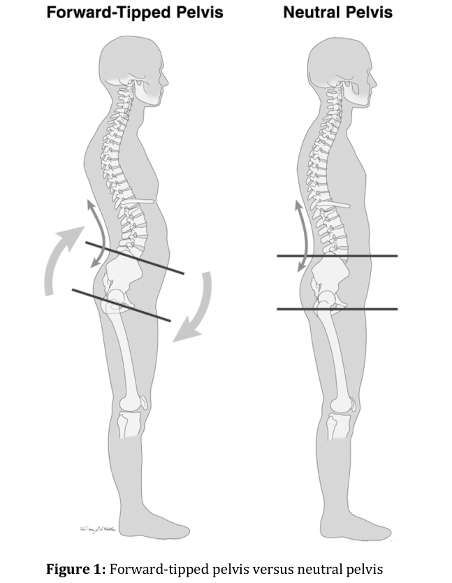 Forward Tipped Pelvis vs Neutral Pelvis