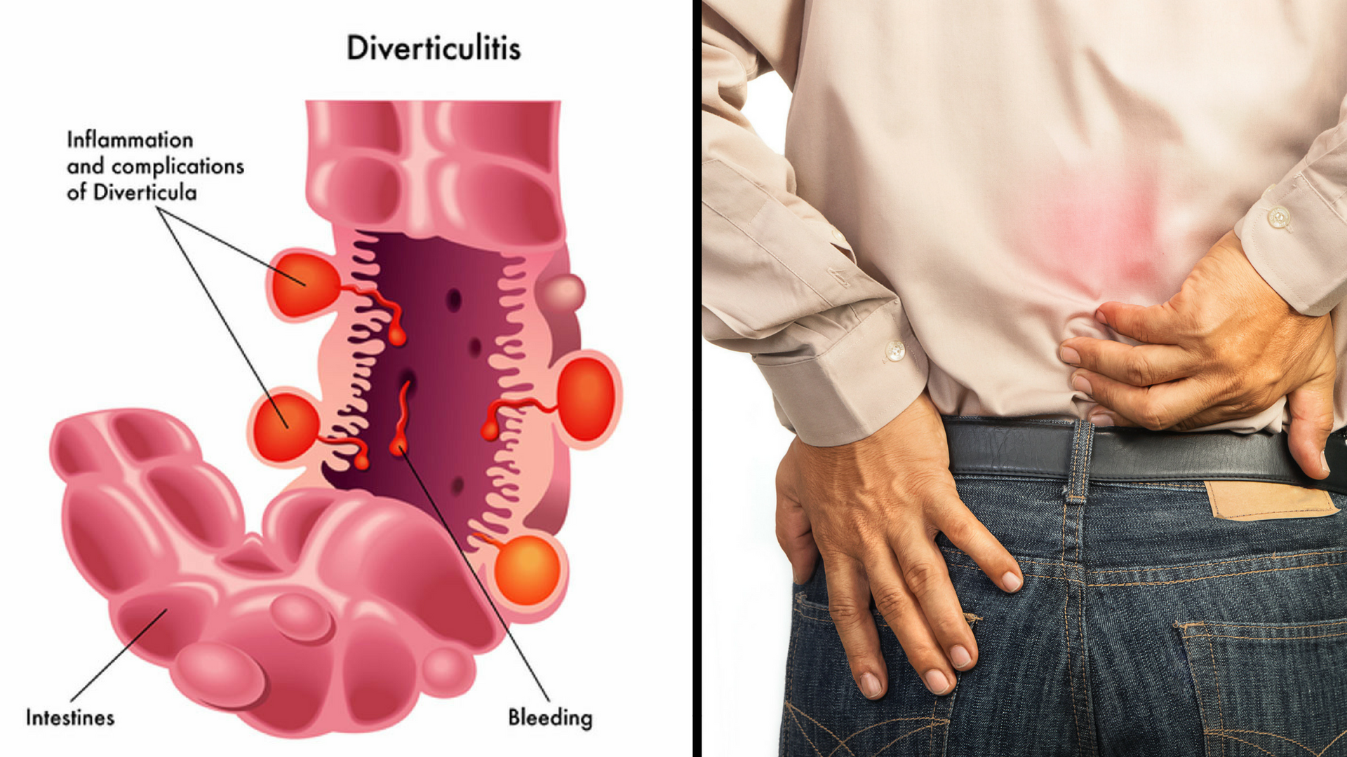 diverticulitis low back pain