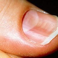 concave fingernail