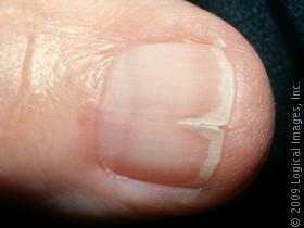 Ridges in Fingernails: 8 Health Warnings Your Fingernails May Be Sending