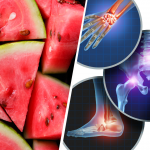 Watermelon: The Refreshing Fruit That Fights Joint Pain