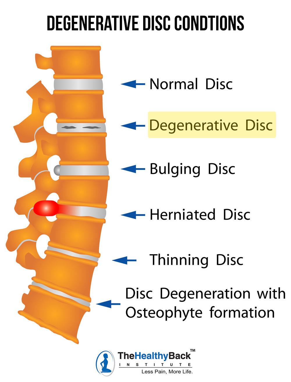 degenerative disc disease, degenerative disc conditions